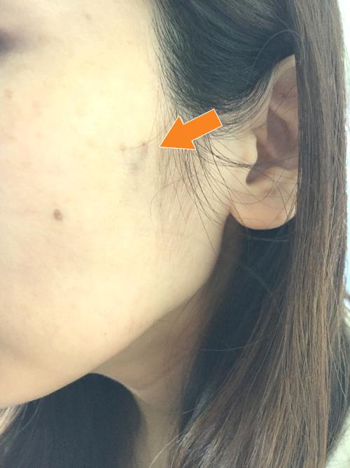 頬のヒアルロン酸注入の翌日の傷跡