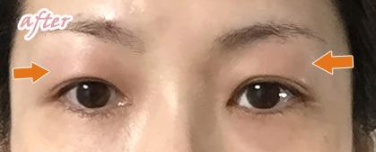 目の上、目の下のPRP注入の翌日の腫れ