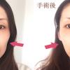 【体験写真有】ヒアルロン酸を頬に入れた30代女子ビフォーアフター。実体験から料金、持続期間、ダウンタイムを詳細解説