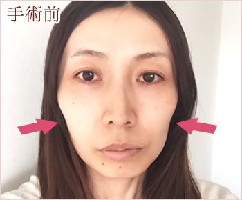 頬へのヒアルロン酸注入体験談 ビフォー