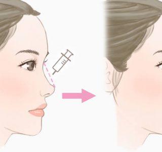 鼻 ヒアルロン酸