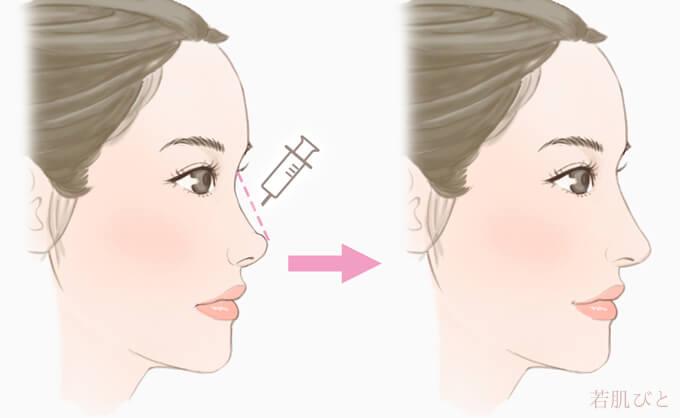 鼻ヒアルロン酸注入