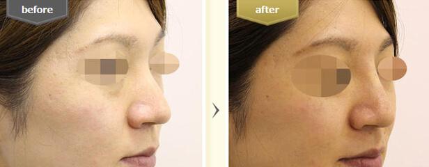 東京美容外科のビフォーアフター