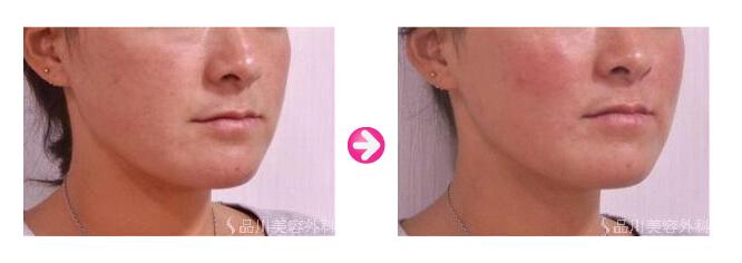 品川美容外科のヒアルロン酸注入ビフォーアフター