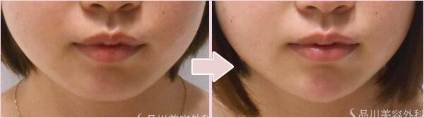 顎のヒアルロン酸注入