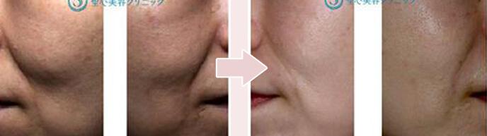 ほうれい線のヒアルロン酸注入50代女性