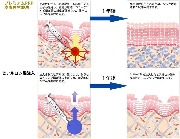 PRPとヒアルロン酸注射の違い