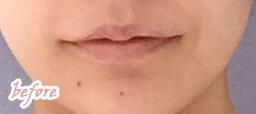唇ヒアルロン酸注入前