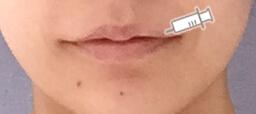 唇へヒアルロン酸を注射