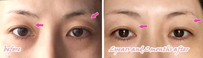 目の上の凹みにPRP 2年後の状態との比較