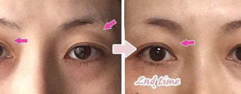 瞼のくぼみPRP