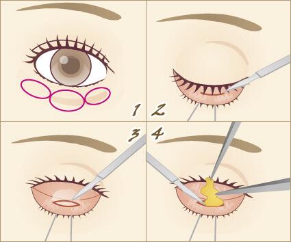 目の下の脂肪取り(経結膜下脱脂法)