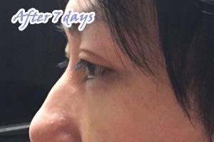 経結膜下脱脂法 手術から3日後 横顔