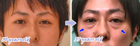 下瞼のふくらみ