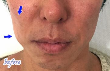 頬のくぼみ 男