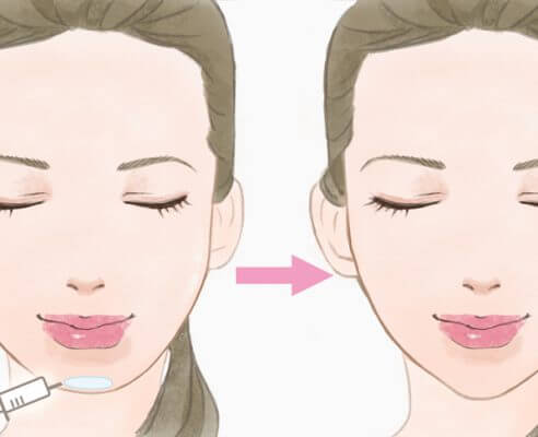 顎ヒアルロン酸 料金