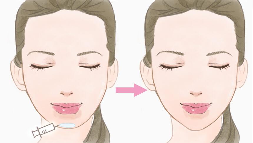 顎ヒアルロン酸注入