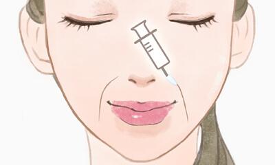 ほうれい線ヒアルロン酸注射