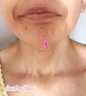 顎ボトックス注射直後