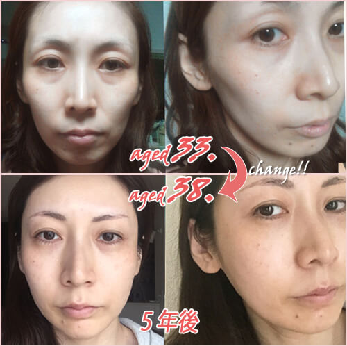 美容ライターイケダ 33歳と38歳の比較