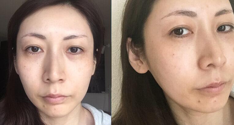 美容ライターイケダ 38歳時点スッピン
